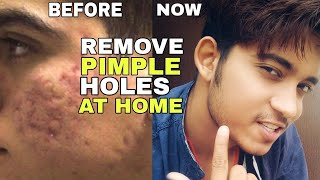 How To Remove Pimple Holes   Hindi   Skin Care Routine To Remove Pimple Holes And Scars