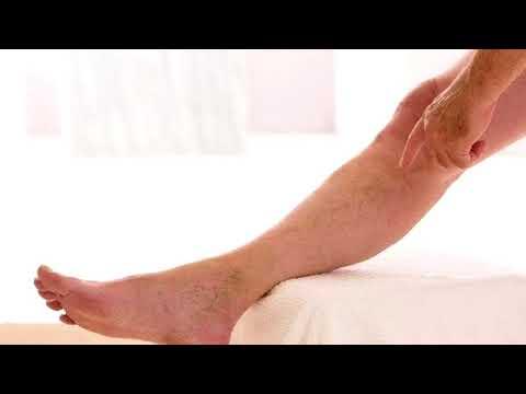 Tabletták a lábak fáradtsága és visszér ellen