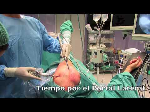 Eliminar el dolor de la inflamación de la hernia intervertebral