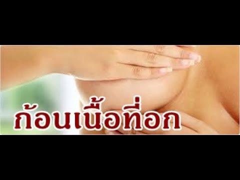 การผ่าตัดเต้านมหญิง