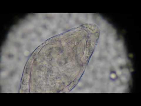Hpv papilloma virus vaccino