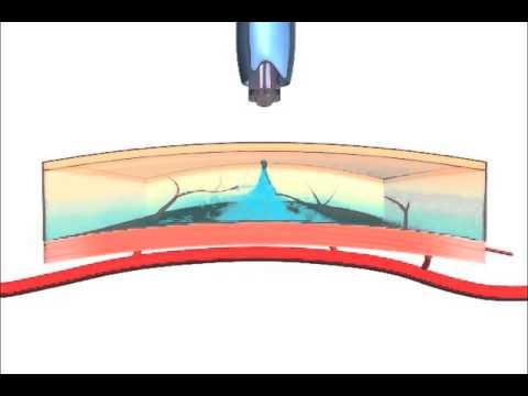 Léčit zuby v cukrovce