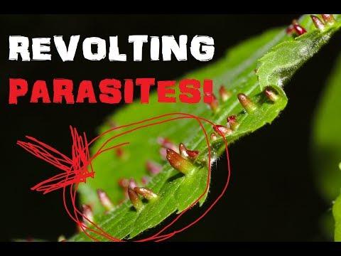 Tumitinging doktor ng parasites at worms ang pangalan