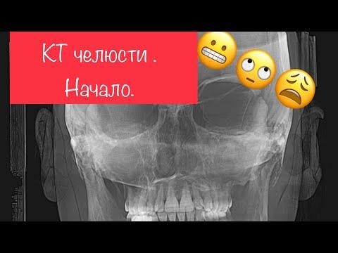 КТ челюсти, суставов, всего черепа  💀 🤪