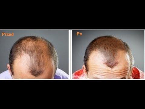 Zmniejszyła testosteron wypadanie włosów