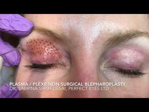 Nano-plasma or Plexr blepharoplasty