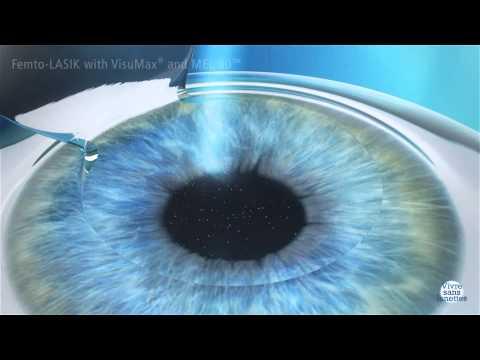 Le polissage laser de la personne le principe