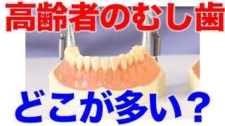 高齢者は噛み合わせ部分がむし歯になりやすい?