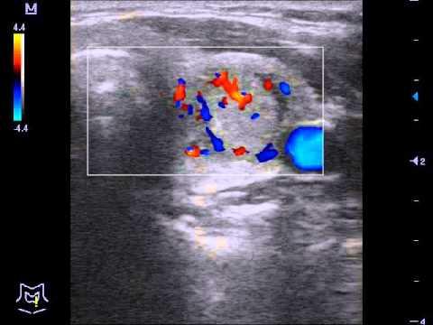 Эндоскопическая операция рака предстательной железы