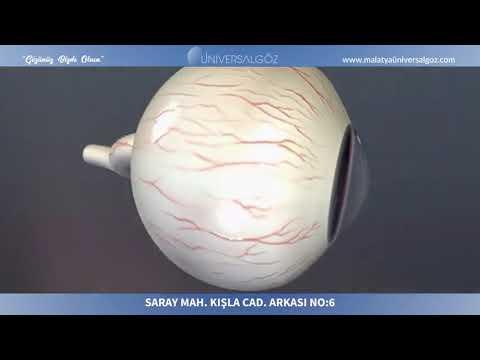Universal Göz Hastanesi Malatya