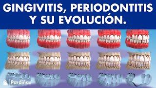 Gingivitis, periodontitis y su evolución ©