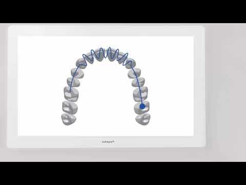 3Shape TRIOS Scan Strategy - Full Arch