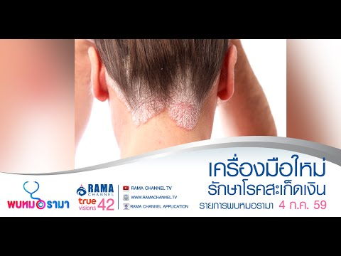 Oozing ครีมจาก neurodermatitis