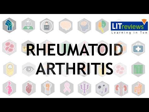 Semne de artrită și artroză a genunchiului