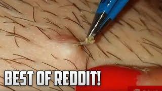 Reddit's Top Pops!  Blackheads, Pimples, Ance & Dermatology