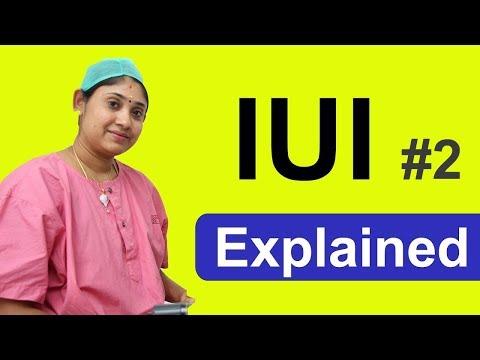 IUI Explained 2 in tamil - விந்தணு உட்செலுத்தும் முறை #IVF #IUI #ICSI  #Sakthifertility
