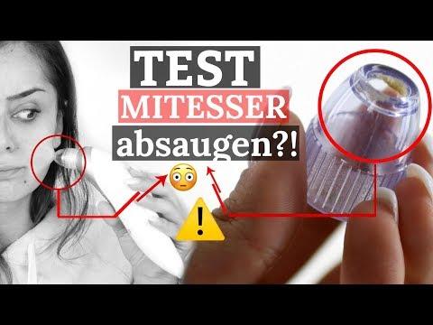 Mitesser + Pickel absaugen ⁉️HEFTIGER Porensauger im Test I