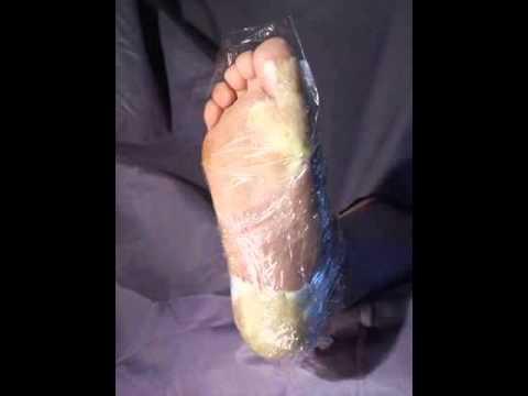 Le psoriasis les ongles les symptômes et le traitement