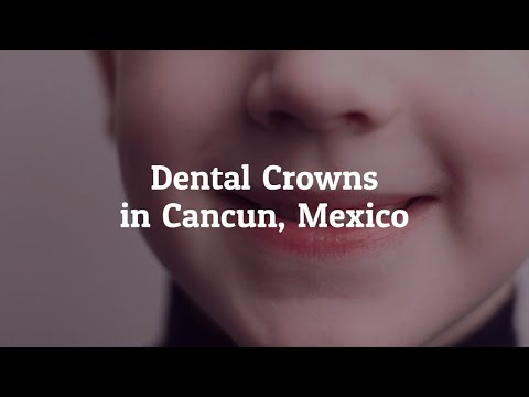 Tips to Get the Best Dental Crowns in Cancun, Mexico