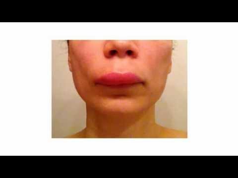 Wrinkles sa ilalim ng mga mata ng ang atay