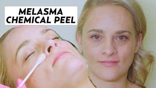 Jessner Peel: An Effective Melasma Treatment!! | #MAKEOVER