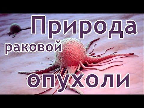 Природа раковой опухоли