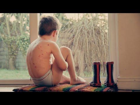 Hogyan kell kezelni a test durva vörös foltjait