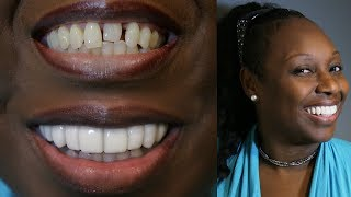 Youtube Video New CHALLENGE SMILE MAKEOVER- BRIGHTER IMAGE LAB -Must See Before and Afters!!