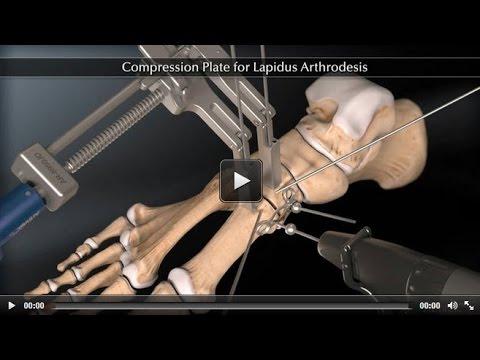 Video Übungen für Osteoarthritis des Knies