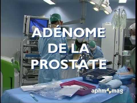 Clinique prostatite il
