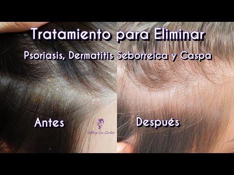 Los óleos etéricos contra la psoriasis sobre la cabeza