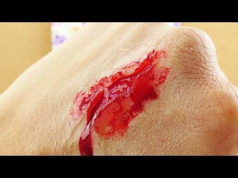 Bandage am Sprunggelenk nach dem Bruch