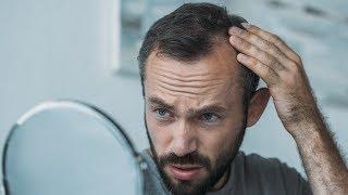 Vindecarea alopeciei: episodul 2