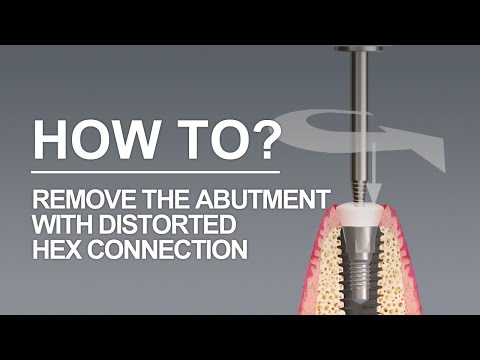 Removing the abutment with distorted Hex connection