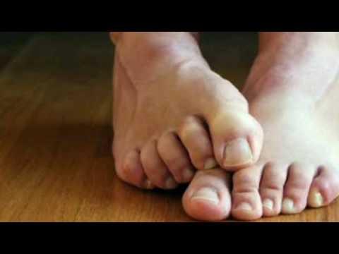 El hongo de las uñas por la homeopatía
