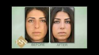 Rhinoplasty on Beverly Hills Female, Amazing Results!
