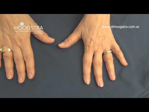 Hlorka al hongo de las uñas