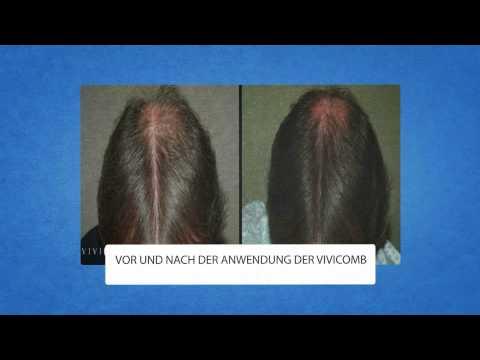 Die Vitamine für das Haar auf iherb die Rezensionen