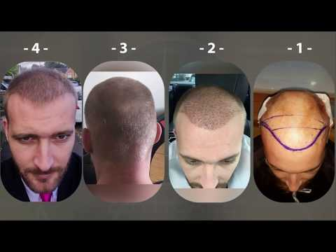 Before & After Cases l Hair Transplant - Esthcare Clinic