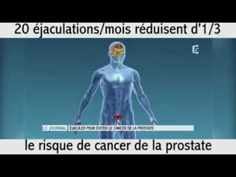 Est le cancer de la prostate traité avec 4 degrés