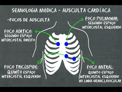 Métodos de pesquisa de crise hipertensiva
