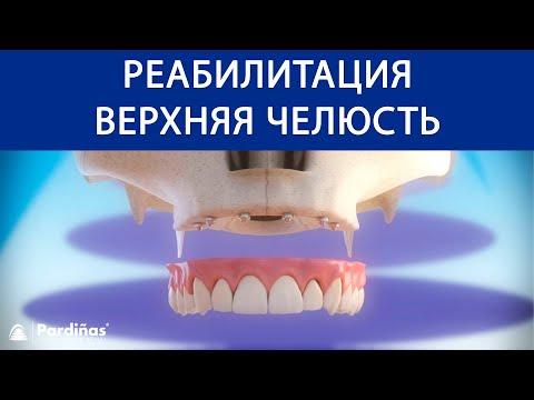 Реабилитация верхняя челюсть с 6 зубные имплантаты ©
