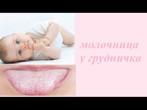 Молочница у новорожденного во рту как лечить