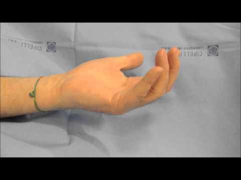 Cambiamenti distrofici della colonna vertebrale cervicale