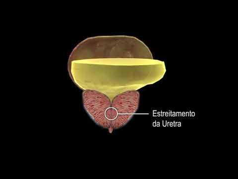 Massagens contra prostatite