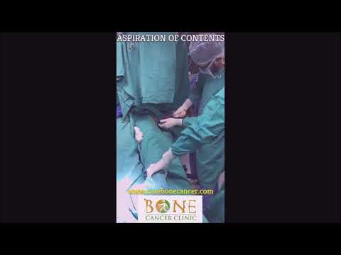 Download Curopsy for Aneurysmal Bone Cyst (ABC) by Dr. Rajat Gupta Mp4 HD Video and MP3