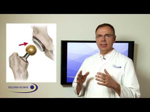 Ameisensäure und Osteochondrose