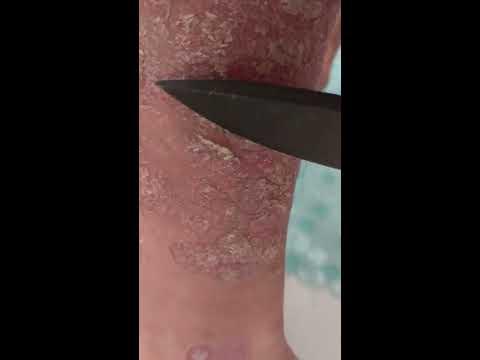 Wie die Verschärfungen der Schuppenflechte abzunehmen