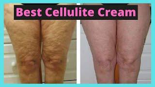 The Best Cellulite Cream at Home Quick Fix