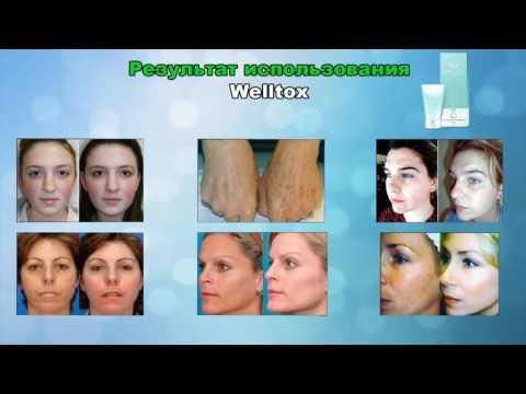 Как удалить пигментные пятна на лице у ребенка